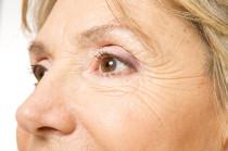 Fältchen um die Augen Lachfältchen